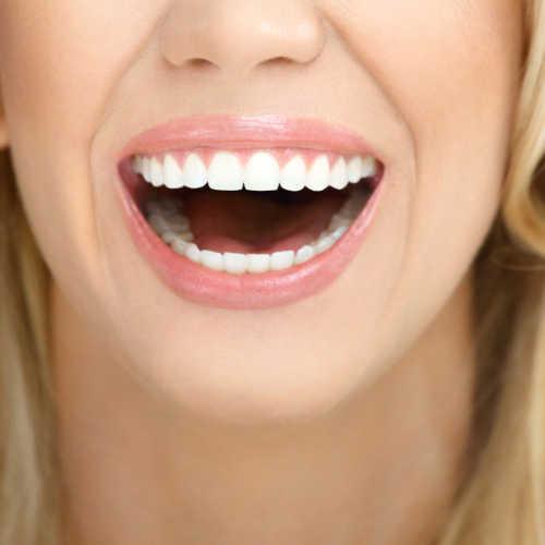 Extreme Smile Makeovers | Albertville | Guntersville AL