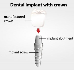 dental implants with crown