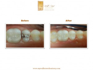 tooth colored fillings.