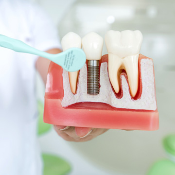 what to know before getting dental implants